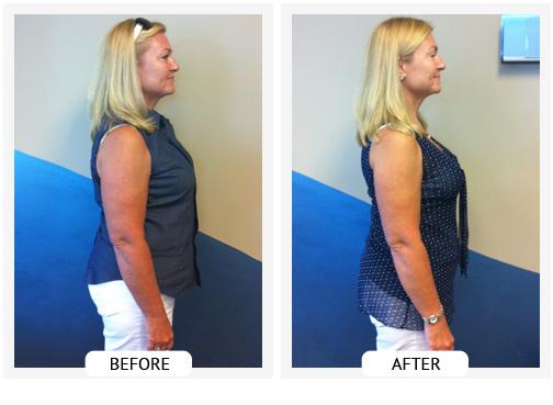 ChiroThin Weight Loss Plan | Ballantyne Weight Loss Center