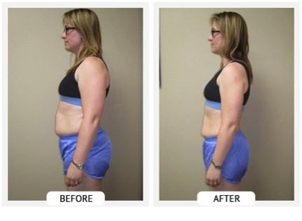 Ballantyne Weight Loss Clinic at Gallagher Chiropractic and Wellness