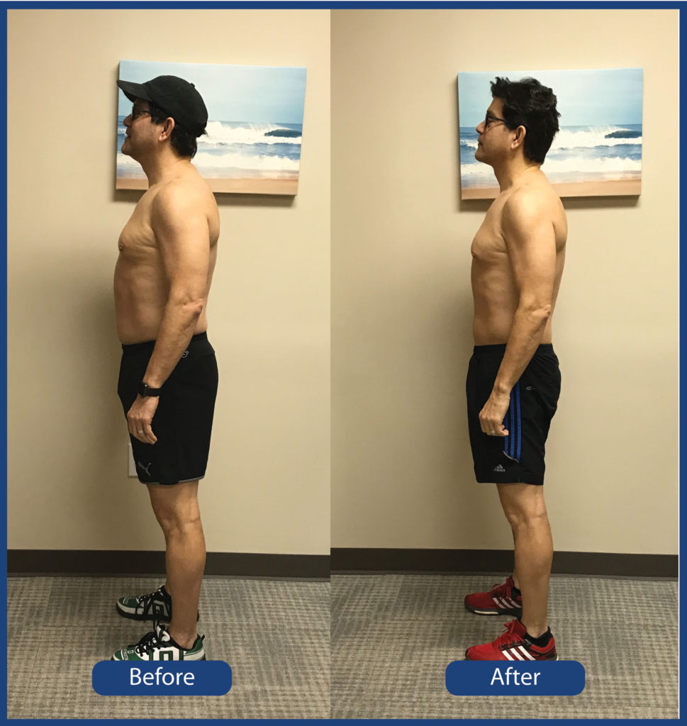 Ballantyne Weight Loss Center at Gallagher Chiropractic and Wellness in Charlotte