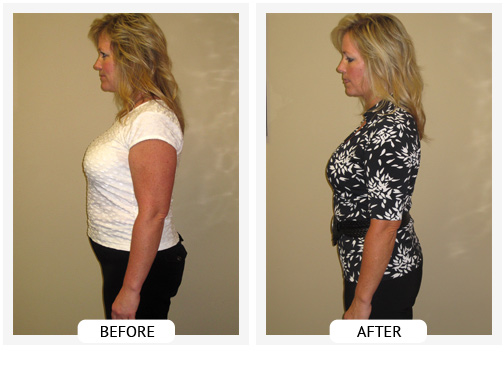 Weight Loss at Ballantyne Weight Loss Center in Charlotte