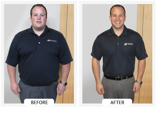 Lose weight at Ballantyne Weight Loss Center in Charlotte